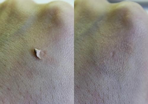 Decolorazione laser di risposte della pelle