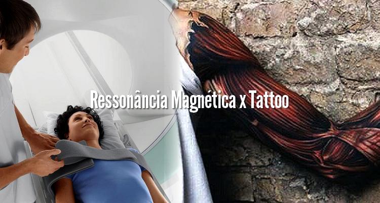 Quem tem tatuagem pode fazer Ressonância Magnética?