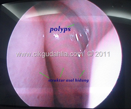 polyps dalam hidung