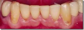cuidados dentales y la erosion dentaria