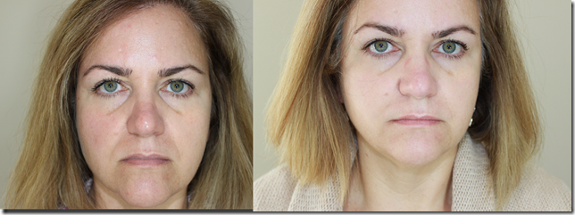 before after Radiesse no makeup
