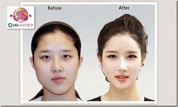 korean-plastic-surgery-35