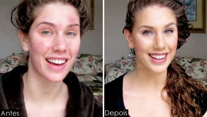 maquiagem espinha disfarcar