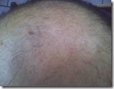 Glatze Therapie