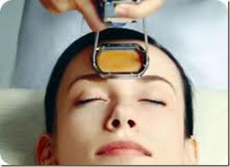 tratamiento para el acne severo1