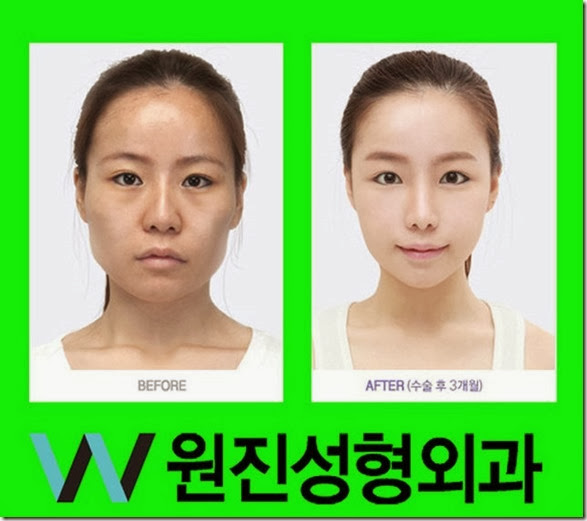 korean-plastic-surgery-28