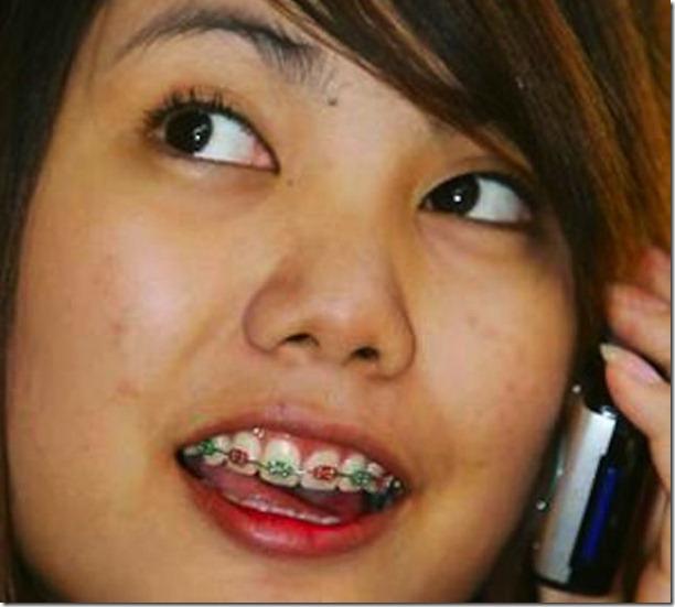 fake-braces-asia-trend-9