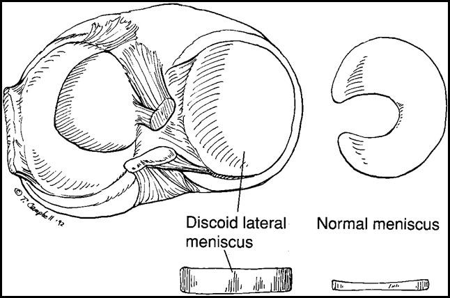 1289167845_discoid-meniscus