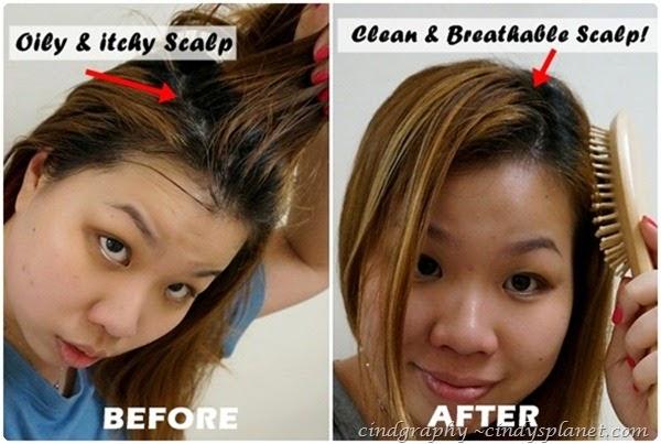 diy itchy scalp
