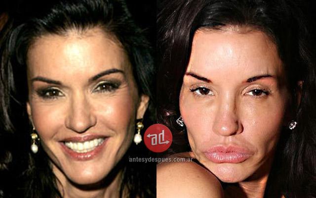 Foto del aumento de labios de Janice Dickinson
