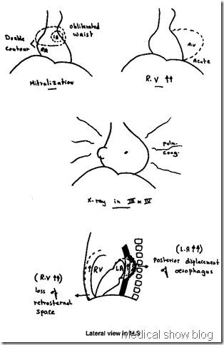 mitral stenosis medicalshow