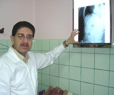 prostata cronica2
