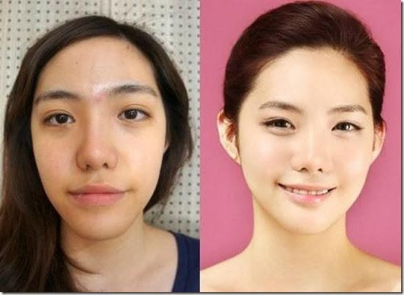 korean-plastic-surgery-10