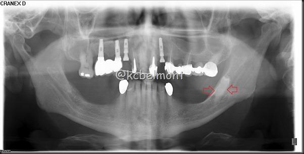 dente incluso ramo ascendente esquerdo