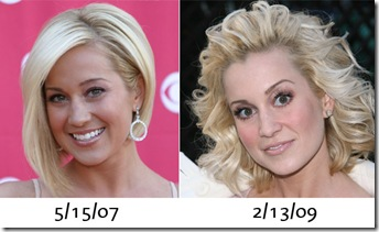 kellie pickler plastic surgery