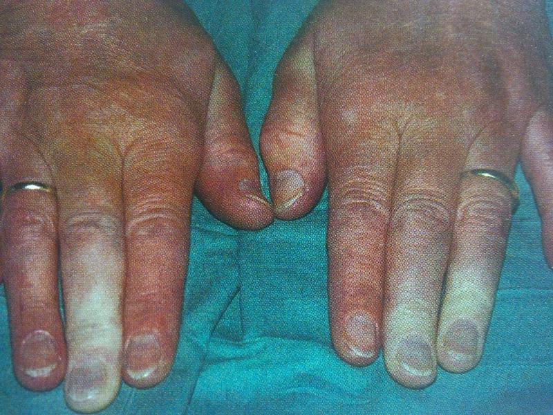 Cambios de color en los dedos