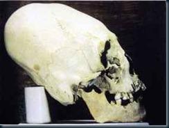 Klaus-Dona-cranios-alongados