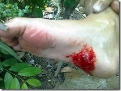 piranha_pe_ferido_sangue_300x225