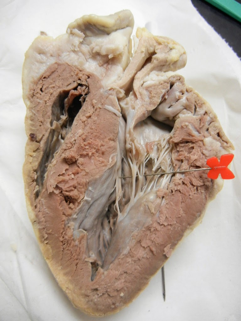 Anatomy Of Heart And Sheep   Dog Breeds Picture