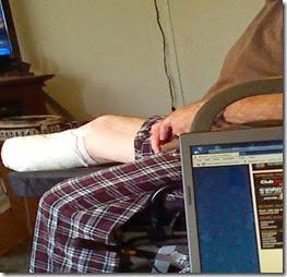 Tom's leg