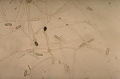 collectotrichum