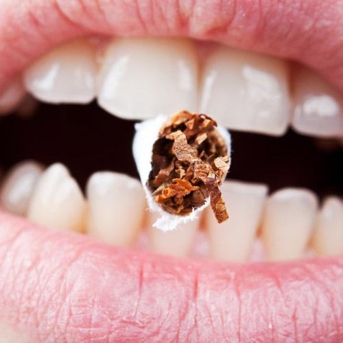 Κάπνισμα και στοματική υγιεινή δεν πάνε μαζί