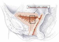 fistula vesiko vaginalis