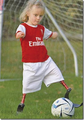 pemain bola cilik tanpa kaki dan tangan