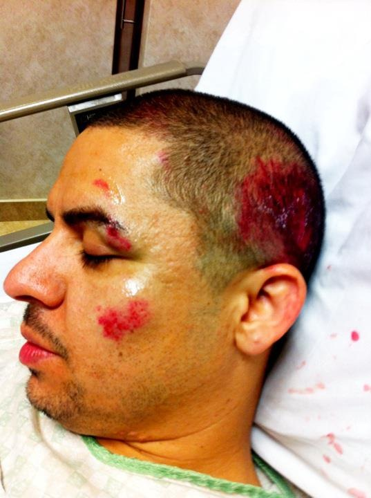 larry hernandez accidente fotos 0001