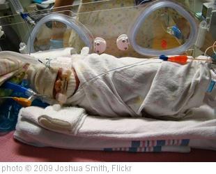 Hanya Satu dari Empat Bayi Sangat Prematur yang Tumbuh Normal