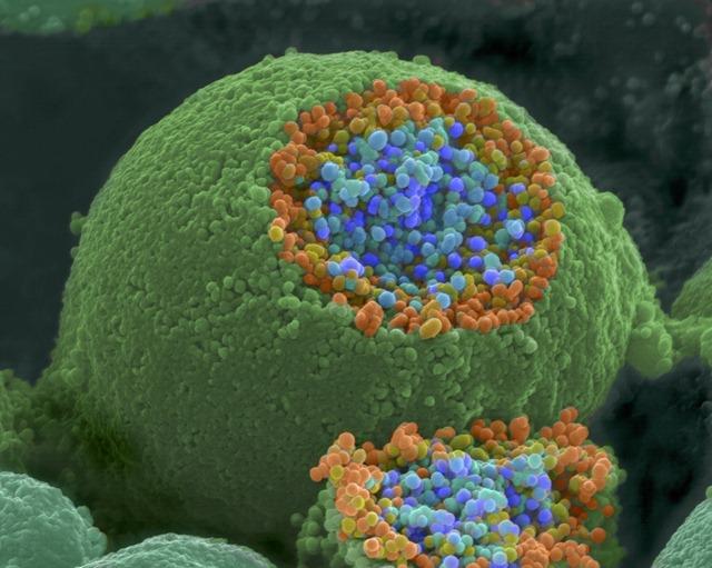Vesículas sinápticas (azul e laranja)