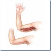 jogo de cirurgia no braço