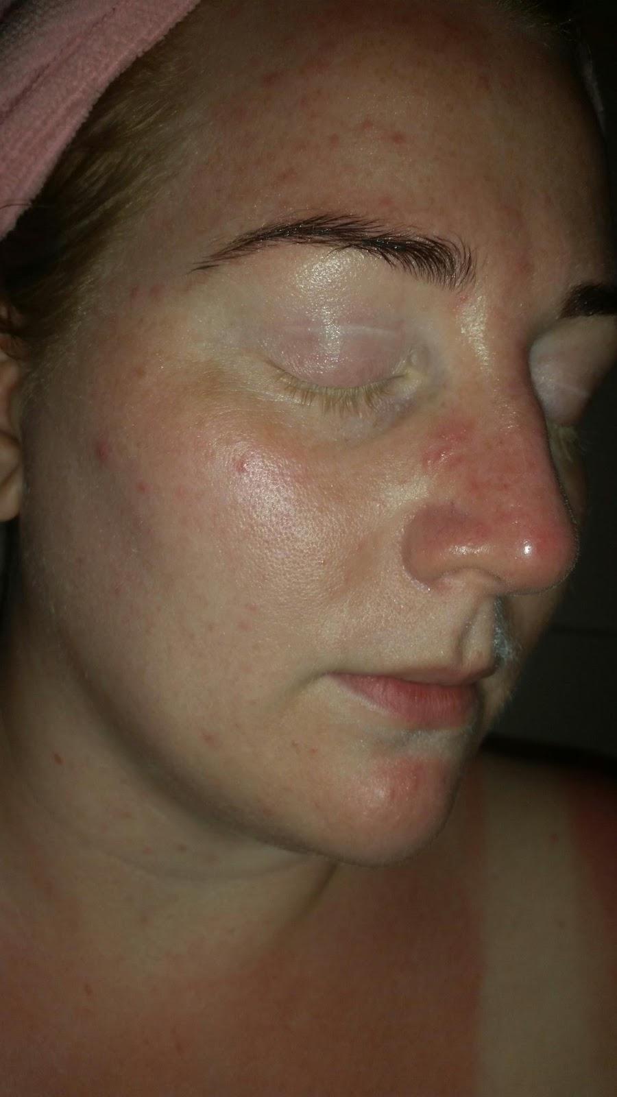 utslag vid näsan