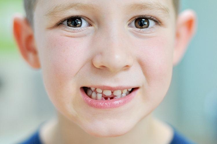 Anders' Lost Teeth (5 of 5) resized TBF