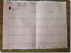 My ECG results