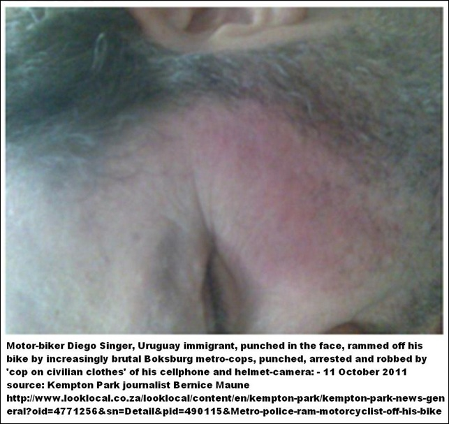 SINGER Diego Uruguay immigrant knocked off bike by Boksburg Metrocops and robbed Sept112011