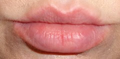 lips after using Kaplan MD Lip 20 Mask