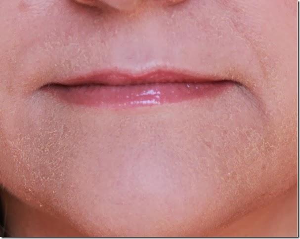 Light honey skin facials