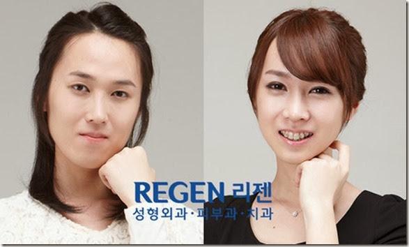 korean-plastic-surgery-23