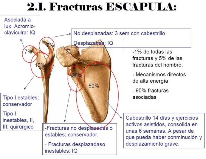 fractura ecapula
