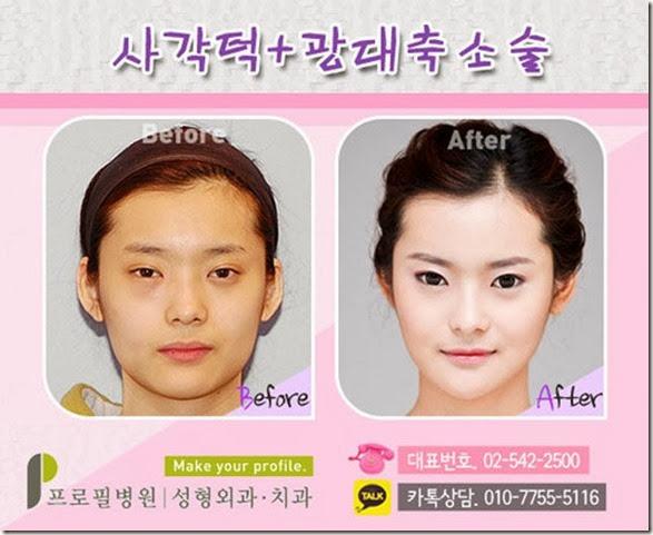 korean-plastic-surgery-12