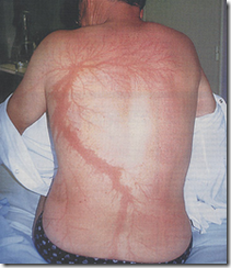 Lichtenberg figure on human skin