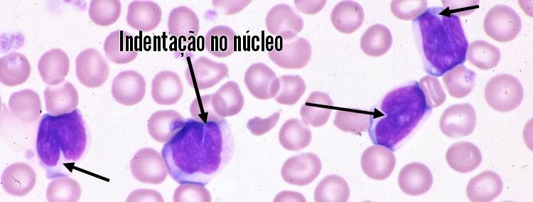 núcleos lobulados
