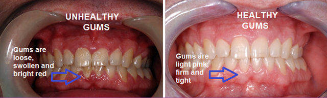 holly-made-gum-disease1