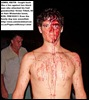 TILLET grandson KEITH LEWIS fought like a lion against attackers of granny FEB102011 MTUBATUBA  ZULULAND OBSERVER