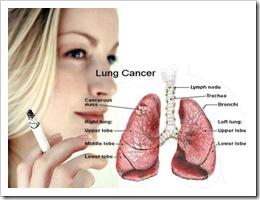 kanker_paru_paru_kanker_paling_mematikan