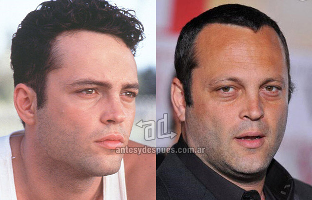 Hair Loss Before &amp; After of  Vince Vaughn