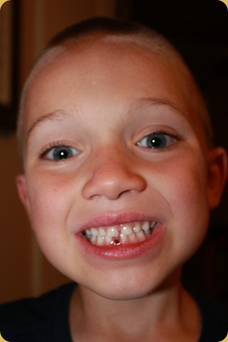 Isaac's Lost Tooth 003
