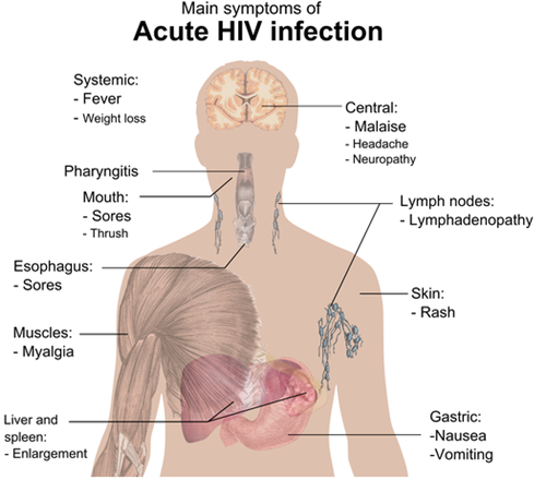 ciri ciri HIV