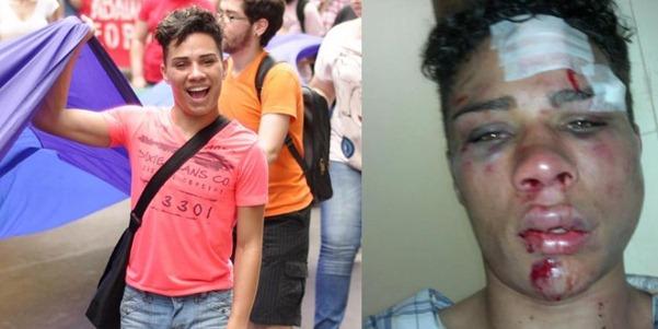 Imagens de Willian na marcha do Fórum Social e após agressão correm nas redes sociais
